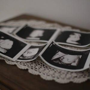תמונות אולטרה סאונד של עובר