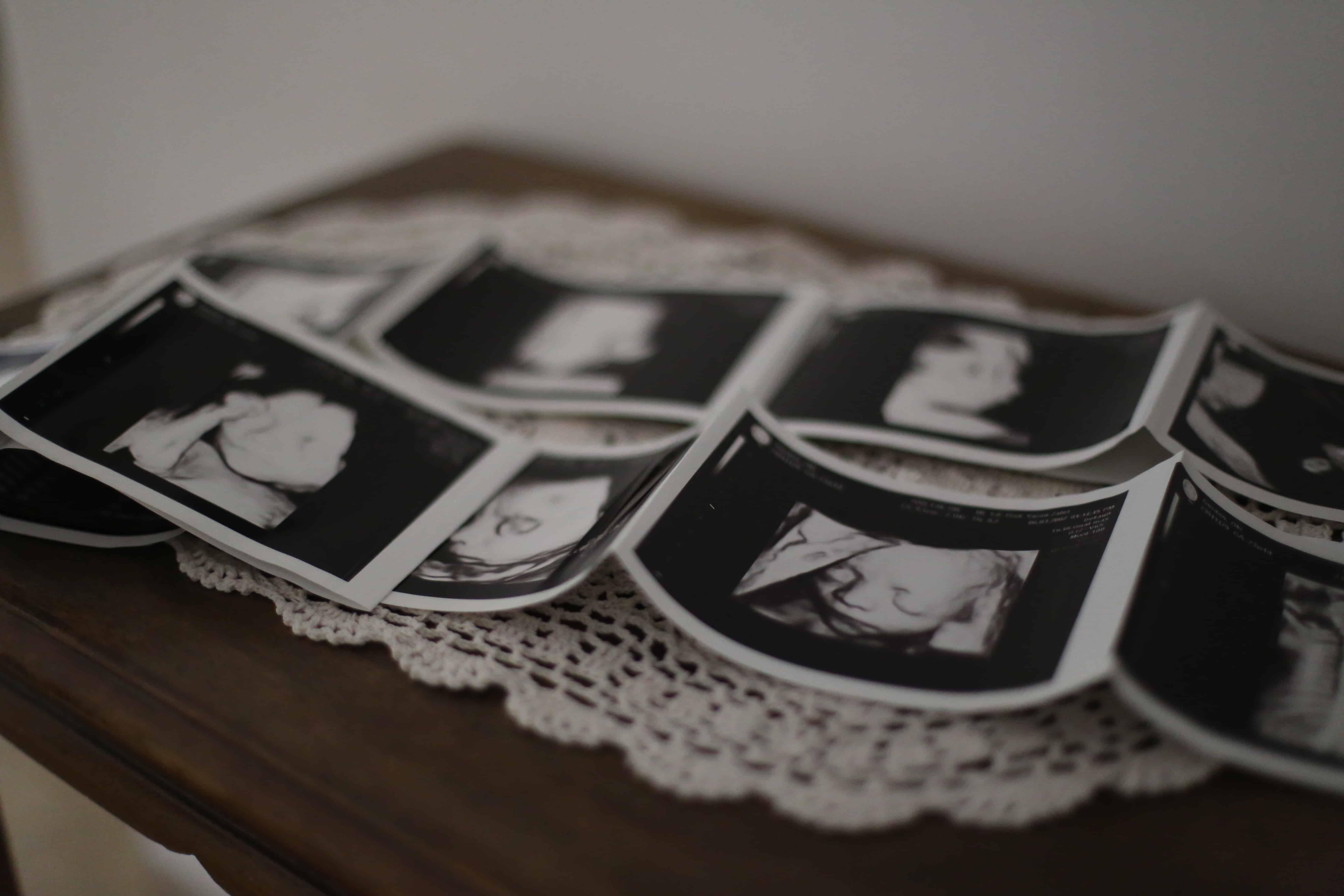 תמונות של תינוק